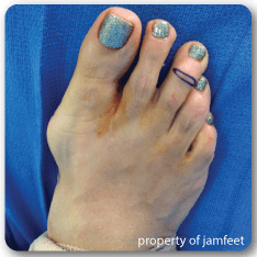 before bunion surgery