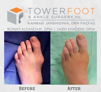 Tower Foot Before and After