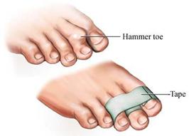 Treating Hammertoe Symptoms