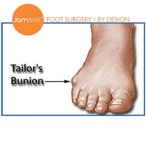 tailor-bunion