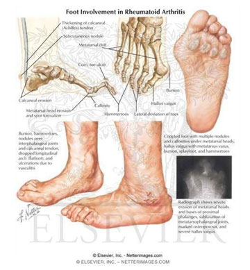 Rheumatoid Arthritis Foot Treatment Los Angeles Foot Doctor