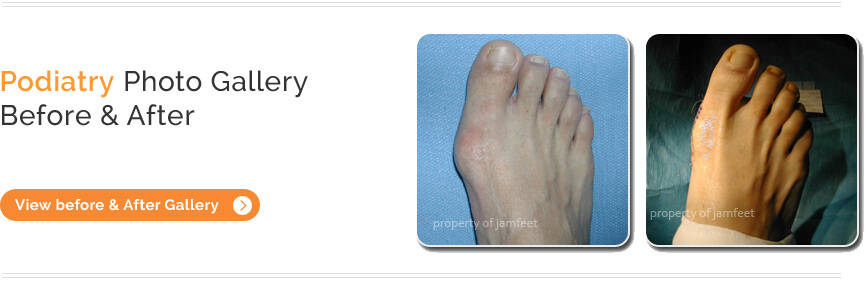 Toenail Fungus Los Angeles | Laser Fungus Treatment Beverly Hills