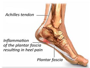Ankle and Feet Tendons
