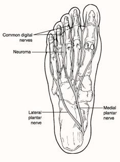 neuroma-1