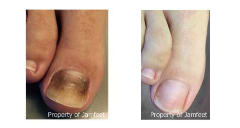 toenail fungus treatment