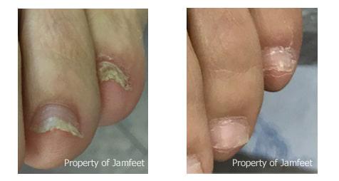 nail fungus removal los angeles