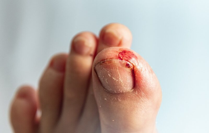 Stubbed toe hurt