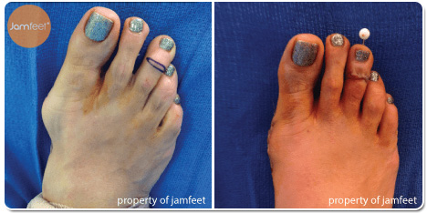 Hammertoe Correction Photos Before and After of Patient 10 by Dr. Jam Feet Beverly Hills