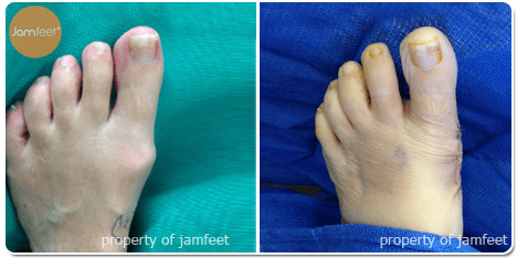 Large Bump Bunion Surgery Before Photo of Patient 11 Dr. Jam Feet Los Angeles
