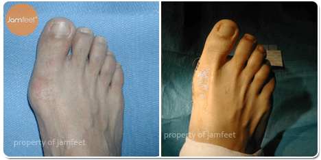 Big Toe Enlarged Bunion Before and After Photo of Patient 13 Dr. Jam Feet Los Angeles