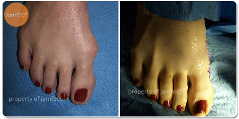 Cosmetic Bunion Surgery Before and After Photo of Patient 14 Dr. Jam Feet Beverly Hills