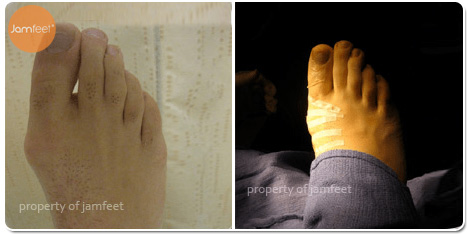 Right Foot Deformity Bunion Surgery Before and After Photo of Patient 15 Dr. Jam Feet Beverly Hills