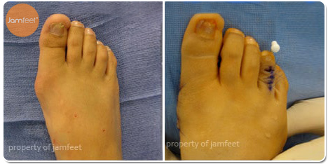 4th Toe Hammertoe Correction Surgery Before and After Photo of Patient 18 Dr. Jam Feet Beverly Hills