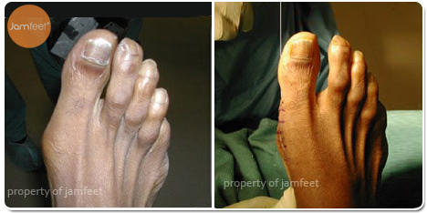 Second Toe Cosmetic Functional Bunion Correction Before and After Photo of Patient 19 Dr. Jam Feet Los Angeles