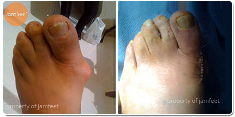 Keller Bunionectomy Photo of Patient 20 Dr. Jam Feet Los Angeles