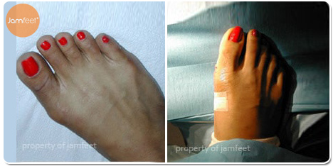 Toe Joint Surgery After Photo of Patient 22 Dr. Jam Feet Los Angeles
