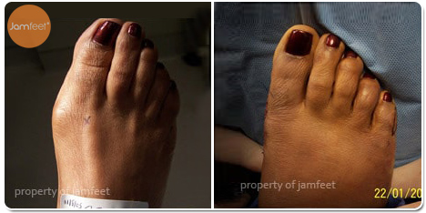 Painful Callus Bunion Surgery Before and After Photo of Patient 22 Dr. Jam Feet Los Angeles