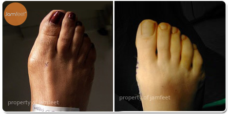 Right Foot Bunion Surgery Photo of Patient 24 Dr. Jam Feet Los Angeles