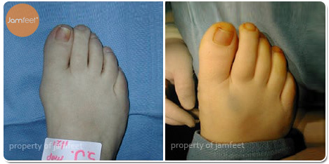 Right Foot Bunion Correction After Photo of Patient 26 Dr. Jam Feet Beverly Hills