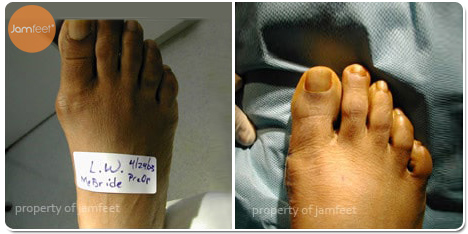 Large Bunion Deformity Photo of Patient 27 Dr. Jam Feet Beverly Hills