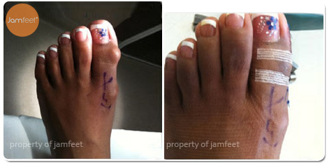 Large Bump Bunion Photo of Patient 28 Dr. Jam Feet Beverly Hills