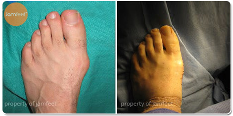 Bunion Deformity Before and After Photo of Patient 29 Dr. Jam Feet Los Angeles