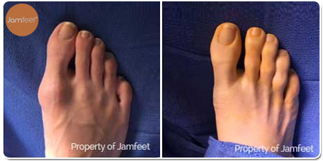 Big Toe Bunion Surgery Photos Before and After of Patient 03 by Dr. Jam Feet Los Angeles