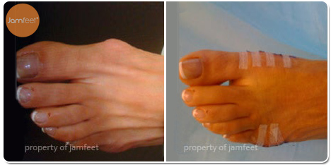 Bunion Deformity Before Photo of Patient 30 Dr. Jam Feet Beverly Hills