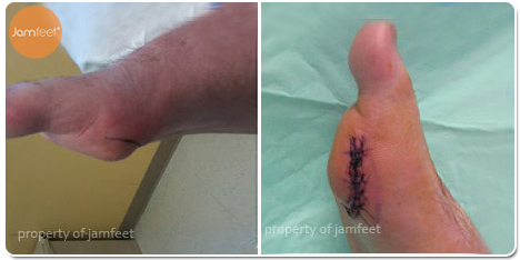 Foot Tumor Bunion Surgery Before Photo of Patient 31 Dr. Jam Feet Beverly Hills