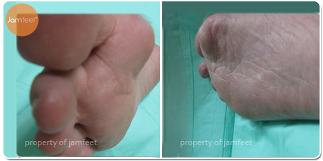 Recovery Bunion Surgery After Photo of Patient 31 Dr. Jam Feet Beverly Hills