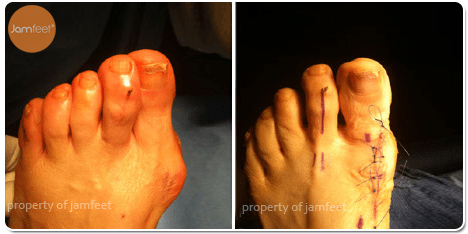 Enlarged Bunion Surgery After Photo of Patient 32 Dr. Jam Feet Los Angeles