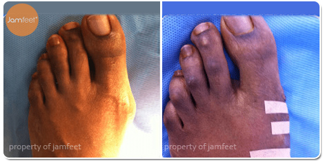 Toe Nail Fungus Before Photo of Patient 34 Dr. Jam Feet Los Angeles