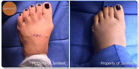 Foot Narrowing Surgery Before Photo of Patient 35 Dr. Jam Feet Los Angeles