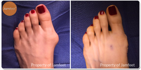 Left Foot Bunion Surgery Photos Before and After of Patient 04 by Dr. Jam Feet Beverly Hills
