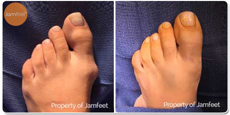 Bunion Deformity Surgery Photos Before and After of Patient 05 by Dr. Jam Feet Los Angeles