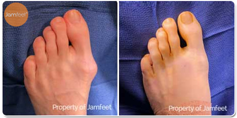 Left Foot Bunion Correction Surgery Photos Before and After of Patient 06 by Dr. Jam Feet Los Angeles
