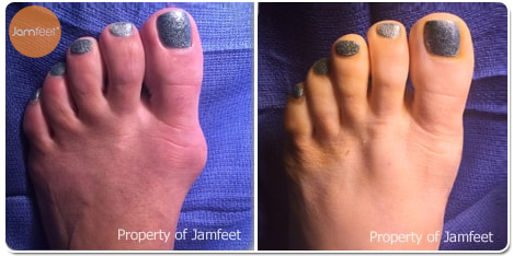 Invasive Bunion Surgery With Hidden Incension Photos Before and After of Patient 07 by Dr. Jam Feet Beverly Hills