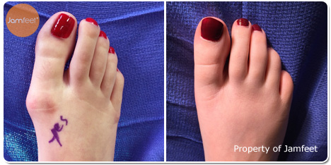 Bunion Surgery Photos Before and After of Patient 08 by Dr. Jam Feet Beverly Hills
