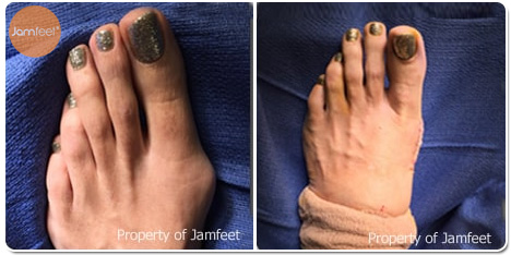 Chronic Pain Bunion Surgery Photos Before and After of Patient 09 by Dr. Jam Feet Los Angeles