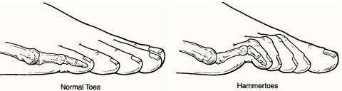 vector illustration of a Hammertoe