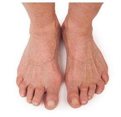 Rheumatoid Arthritis in Feet