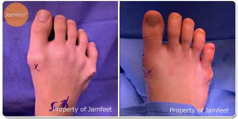 Bunion Surgery Photos Before and After of Patient 01 by Dr. Jam Feet Beverly Hills