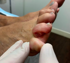 Diabetic foot before picture