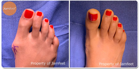 Bunion Surgery Photos Before and After of Patient 02 by Dr. Jam Feet Beverly Hills