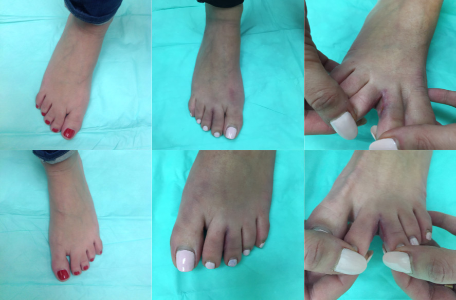 webbed toe separation surgery before & after Picture